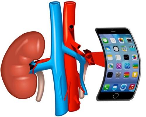 i-kidney_091114051315 [800x600]