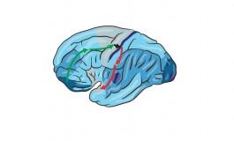 چرا مغز این مقدار انرژِی مصرف میکند؟