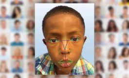 محققان با استفاده از تکنولوژی تشخیص چهره، بیماری نادر ژنتیکی را شناسایی میکنند