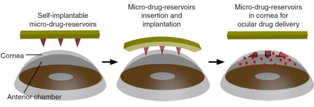 eyepatch-illustration-1000x341 محققان میکروسوزن جدیدی تولید کردهاند که در چشم انسان حل میشود!
