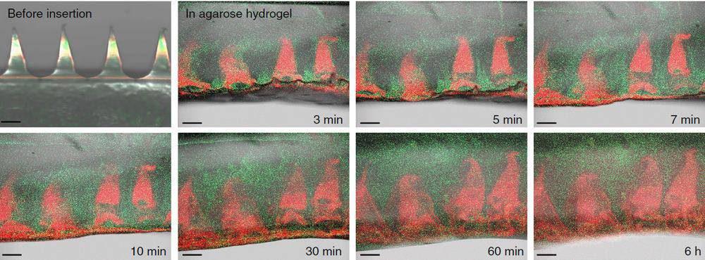 figure-4-1000x370 محققان میکروسوزن جدیدی تولید کردهاند که در چشم انسان حل میشود!
