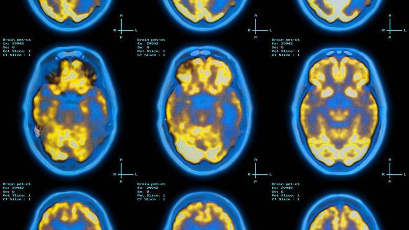 brain_Pet_scan_090618 آیا تلفنهای همراه و امواج رادیویی میتوانند درمانکننده آلزایمر باشند؟