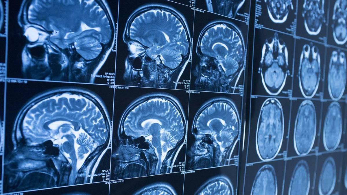 news آیا تلفنهای همراه و امواج رادیویی میتوانند درمانکننده آلزایمر باشند؟
